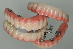 Implant-borne dentures for upper and lower jaw